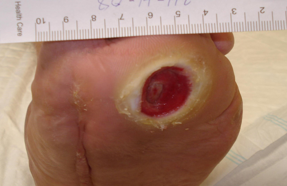 neuropathic_ulcer_in_diabetic_foot1000px650